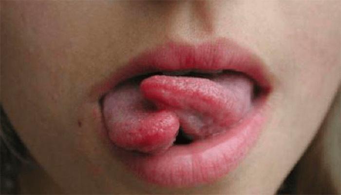 сплиттинг языка